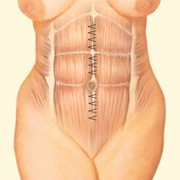 abdomen diagram 1