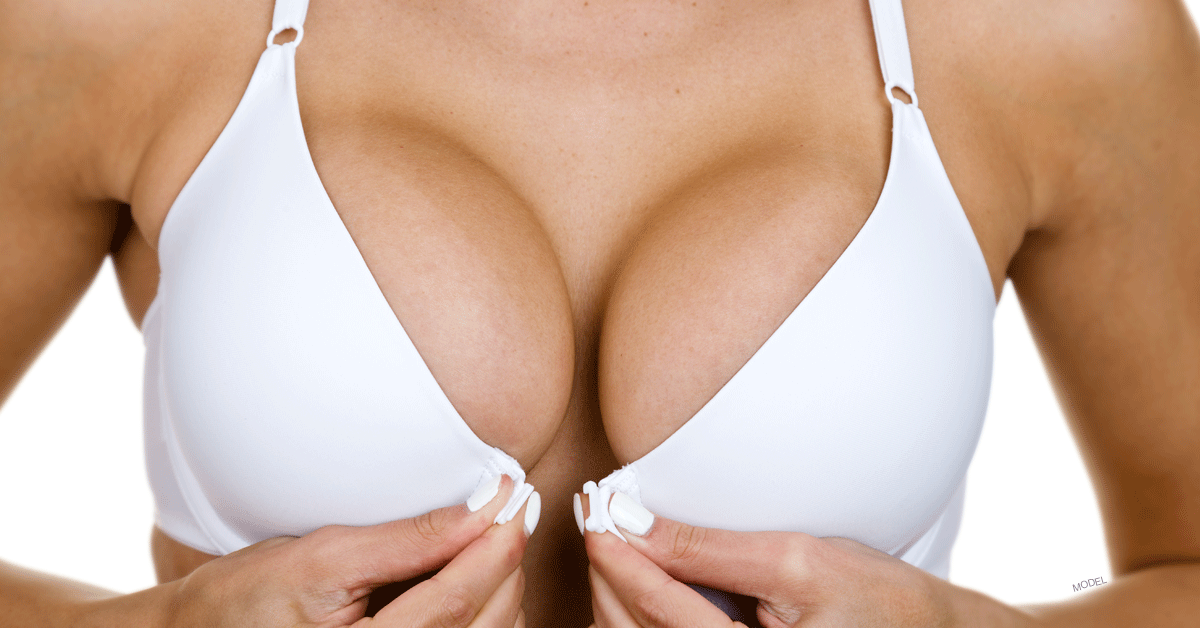Woman in white bra showcasing the results achievable through breast augmentation