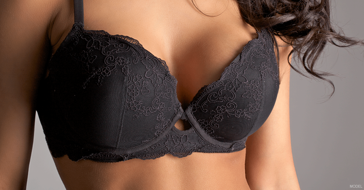 Woman in lace bra after breast surgery for correcting asymmetry